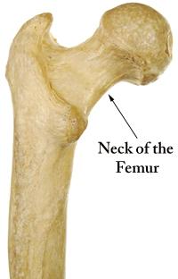 osteoporosis neck pain | neck of femur