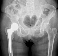does osteoporosis cause pain in the hips
