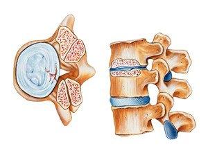 orthotic back brace