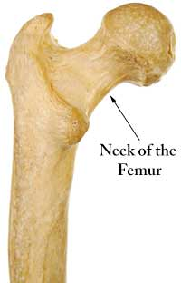 femoral neck osteoporosis • what is femoral neck