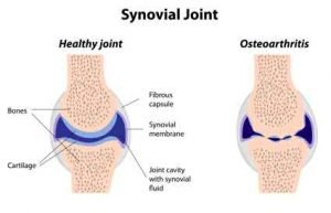 synovial joint hip and knee replacement therapy melioguide ottawa physiotherapy