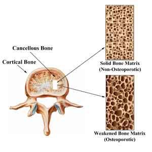 vertebra-cross-section-melioguide