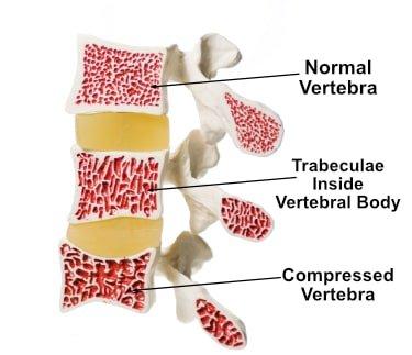 bone quality vertebra trabecular bone